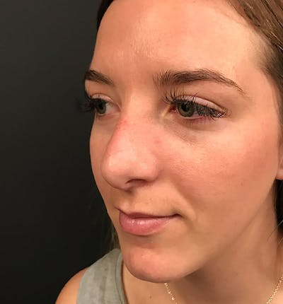 Rhinoplasty Gallery - Patient 14089585 - Image 2