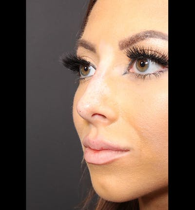 Non-Surgical Rhinoplasty Gallery - Patient 14089586 - Image 2