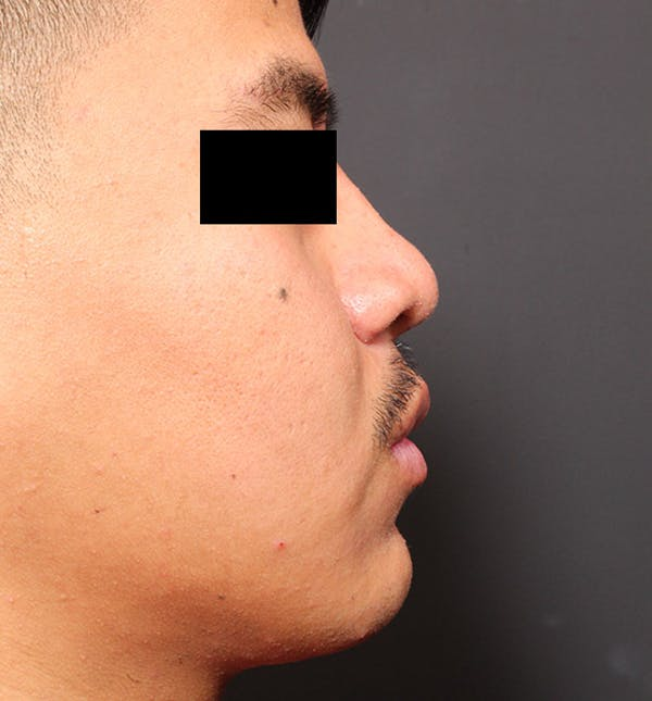 Genioplasty Gallery - Patient 14089584 - Image 9
