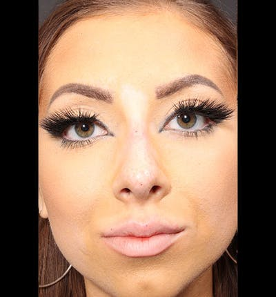 Non-Surgical Rhinoplasty Gallery - Patient 14089586 - Image 4