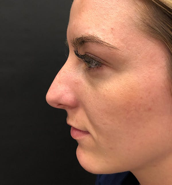 Rhinoplasty Gallery - Patient 14089585 - Image 5