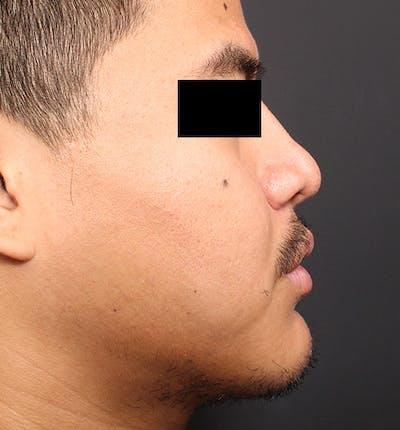 Genioplasty Gallery - Patient 14089584 - Image 10