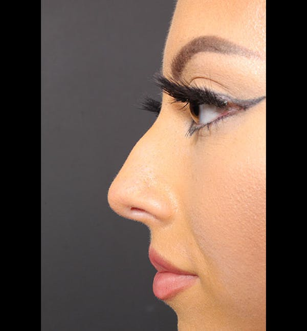 Non-Surgical Rhinoplasty Gallery - Patient 14089586 - Image 5