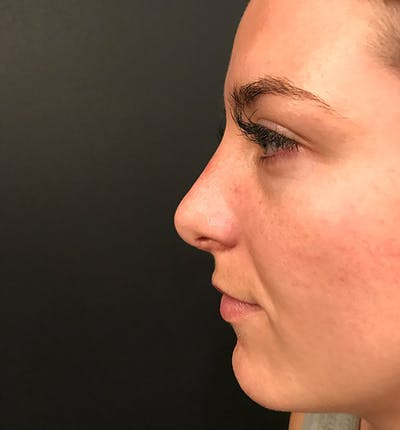 Rhinoplasty Gallery - Patient 14089585 - Image 6