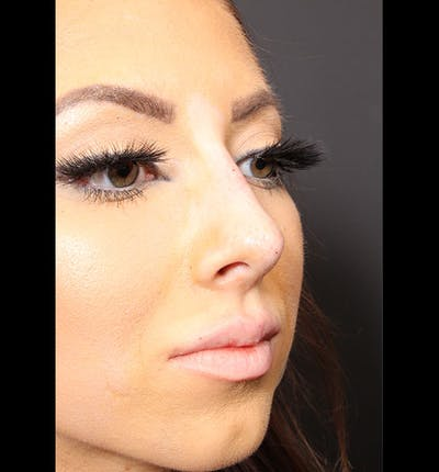 Non-Surgical Rhinoplasty Gallery - Patient 14089586 - Image 8