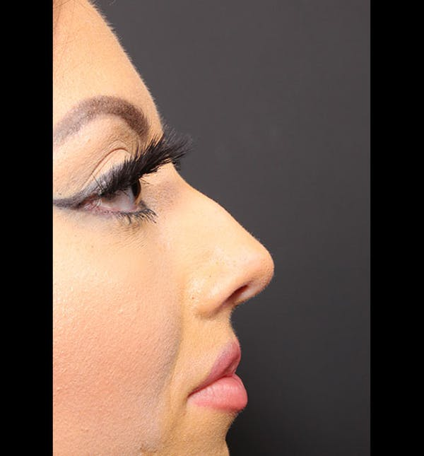 Non-Surgical Rhinoplasty Gallery - Patient 14089586 - Image 9