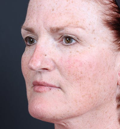Non-Surgical Skin Resurfacing Gallery - Patient 14089589 - Image 1
