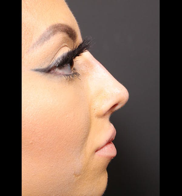 Non-Surgical Rhinoplasty Gallery - Patient 14089586 - Image 10