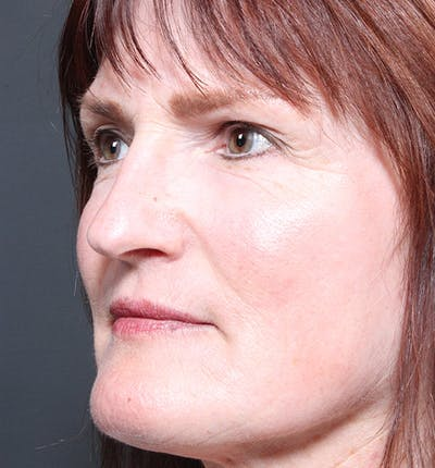 Non-Surgical Skin Resurfacing Gallery - Patient 14089589 - Image 2