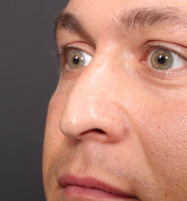 Non-Surgical Rhinoplasty Gallery - Patient 14089591 - Image 1