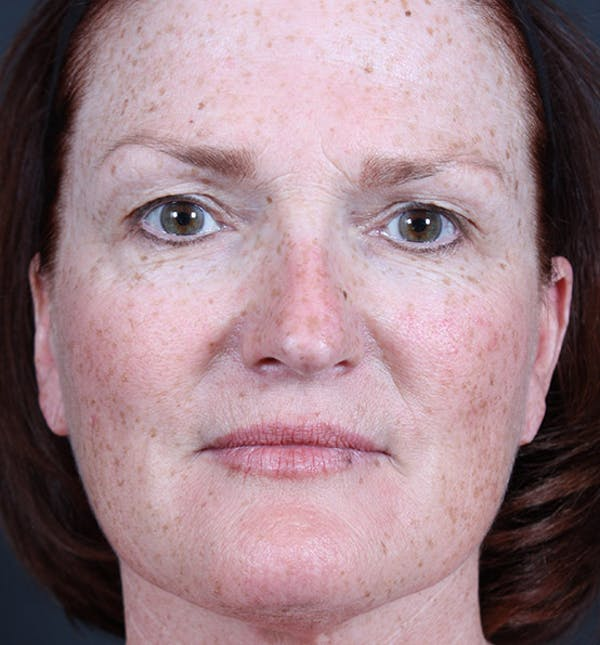 Non-Surgical Skin Resurfacing Gallery - Patient 14089589 - Image 3
