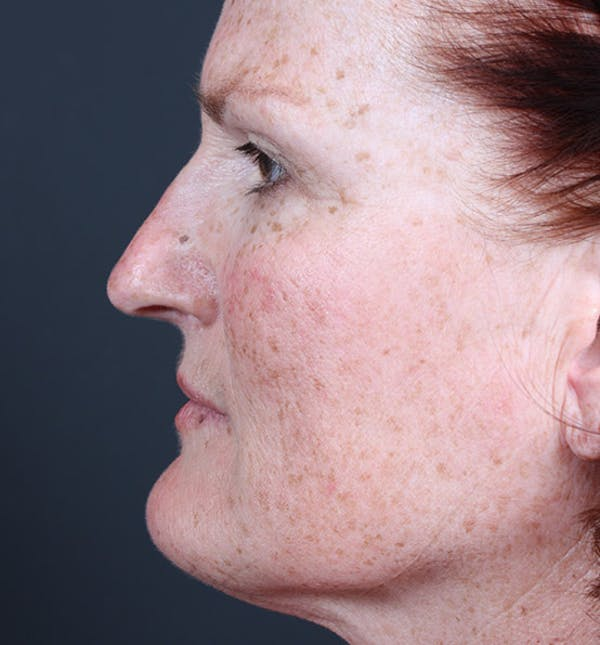 Non-Surgical Skin Resurfacing Gallery - Patient 14089589 - Image 5
