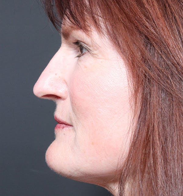 Non-Surgical Skin Resurfacing Gallery - Patient 14089589 - Image 6