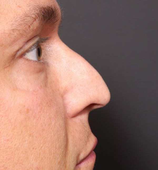 Non-Surgical Rhinoplasty Gallery - Patient 14089591 - Image 7