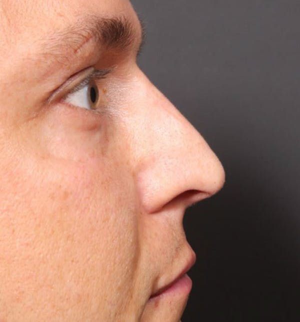 Non-Surgical Rhinoplasty Gallery - Patient 14089591 - Image 8