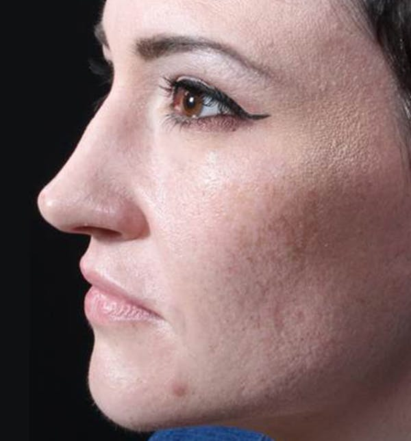 Injectables Gallery - Patient 14089592 - Image 5