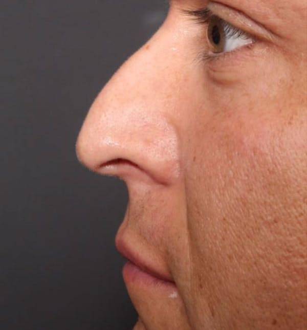 Non-Surgical Rhinoplasty Gallery - Patient 14089591 - Image 9
