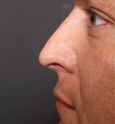 Non-Surgical Rhinoplasty Gallery - Patient 14089591 - Image 10