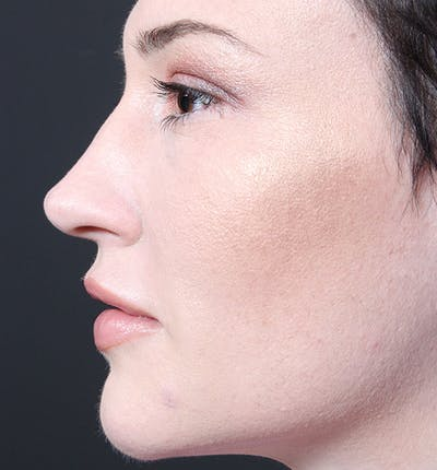 Injectables Gallery - Patient 14089592 - Image 6