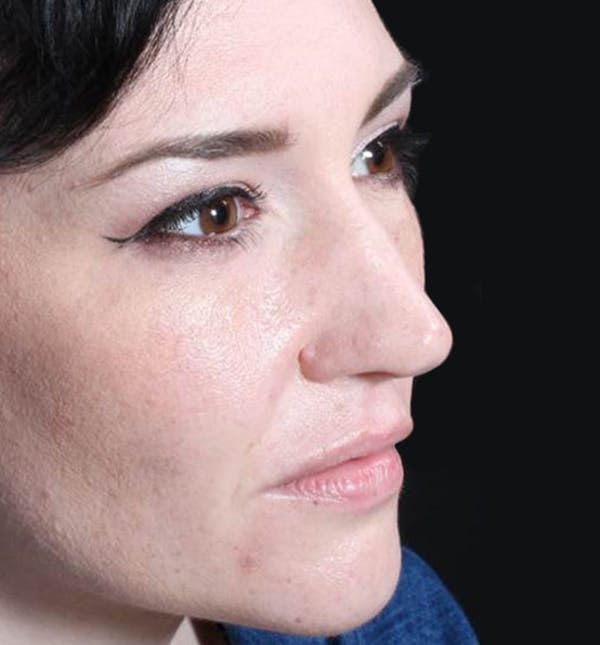 Injectables Gallery - Patient 14089592 - Image 7