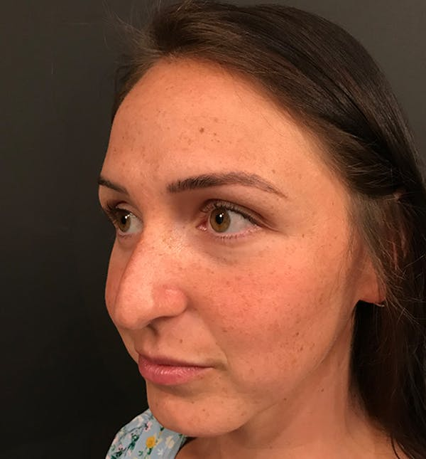 Non-Surgical Rhinoplasty Gallery - Patient 14089597 - Image 1