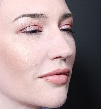 Injectables Gallery - Patient 14089592 - Image 8