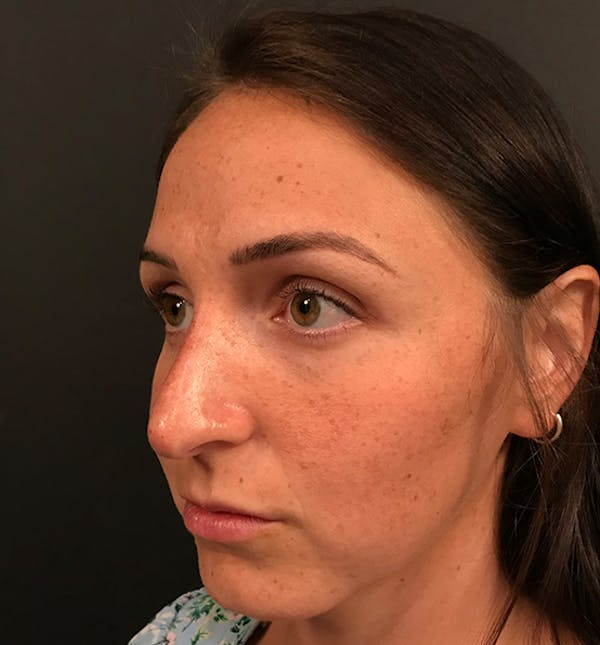 Non-Surgical Rhinoplasty Gallery - Patient 14089597 - Image 2