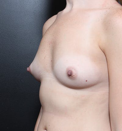 Breast Augmentation Gallery - Patient 14089598 - Image 1
