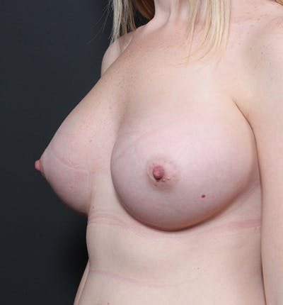 Breast Augmentation Gallery - Patient 14089598 - Image 2