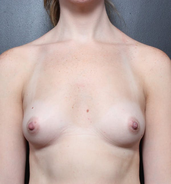 Breast Augmentation Gallery - Patient 14089598 - Image 3