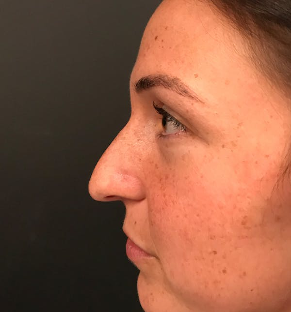 Non-Surgical Rhinoplasty Gallery - Patient 14089597 - Image 5