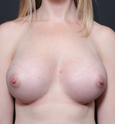 Breast Augmentation Gallery - Patient 14089598 - Image 4