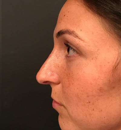Non-Surgical Rhinoplasty Gallery - Patient 14089597 - Image 6