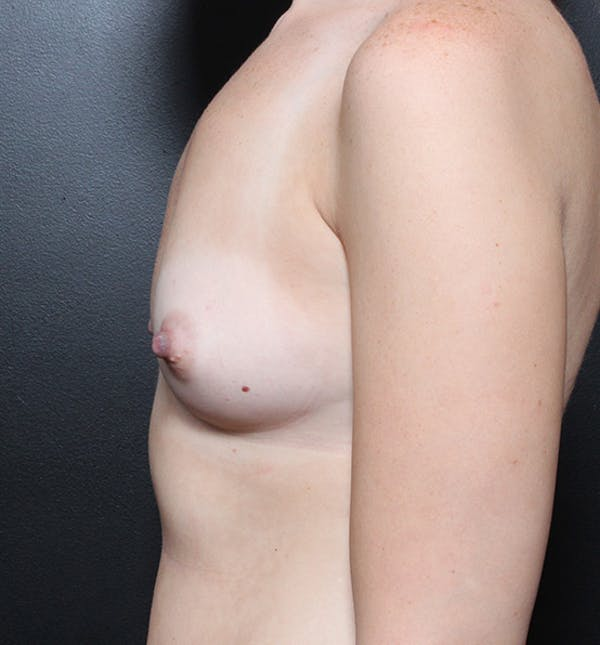 Breast Augmentation Gallery - Patient 14089598 - Image 5