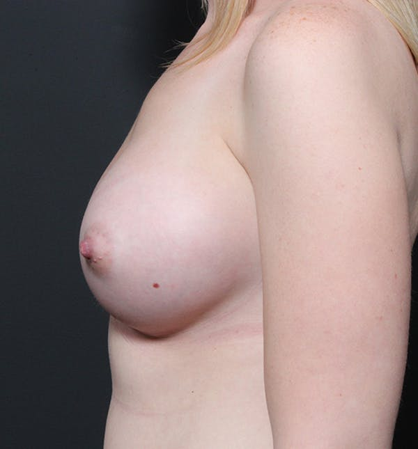 Breast Augmentation Gallery - Patient 14089598 - Image 6