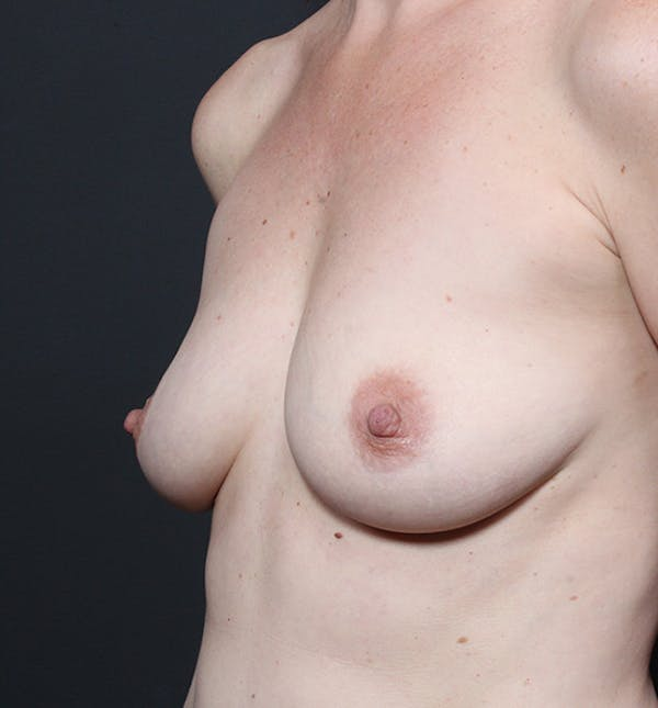 Breast Augmentation Gallery - Patient 14089601 - Image 1
