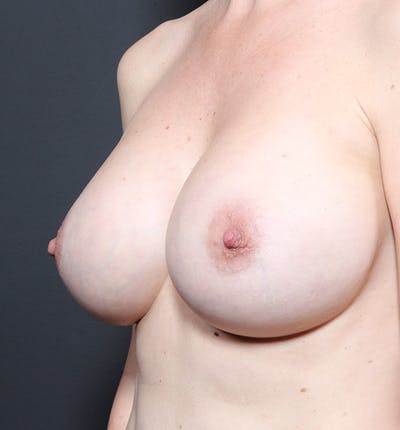Breast Augmentation Gallery - Patient 14089601 - Image 2