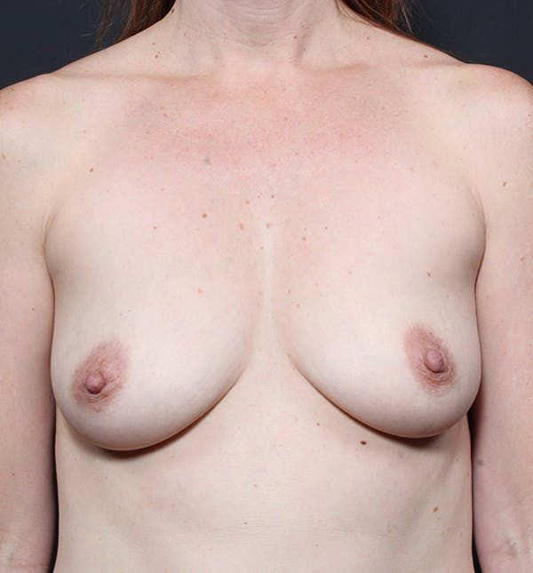 Breast Augmentation Gallery - Patient 14089601 - Image 3