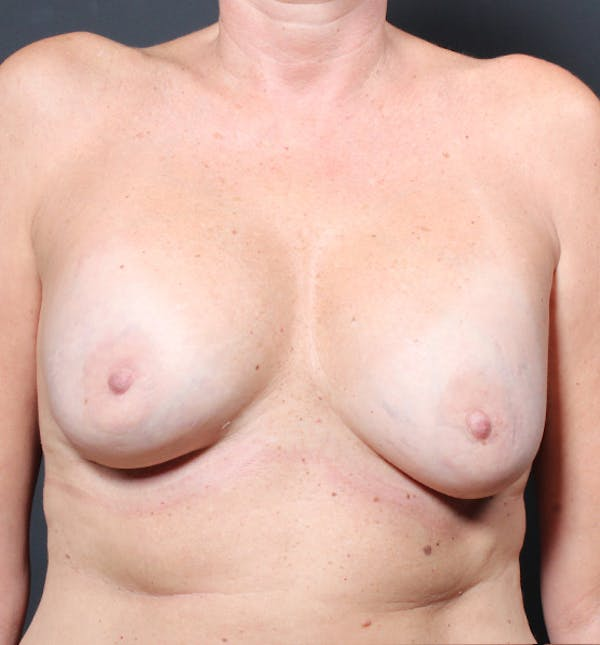 Breast Implant Revision Gallery - Patient 14089603 - Image 3