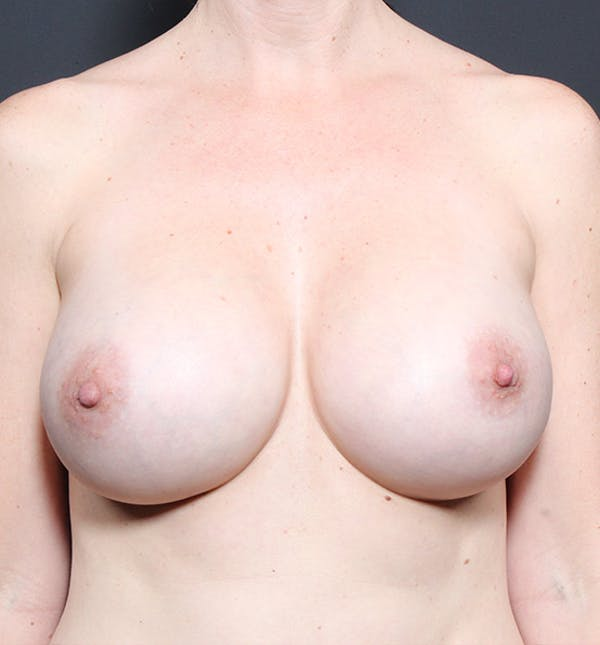 Breast Augmentation Gallery - Patient 14089601 - Image 4