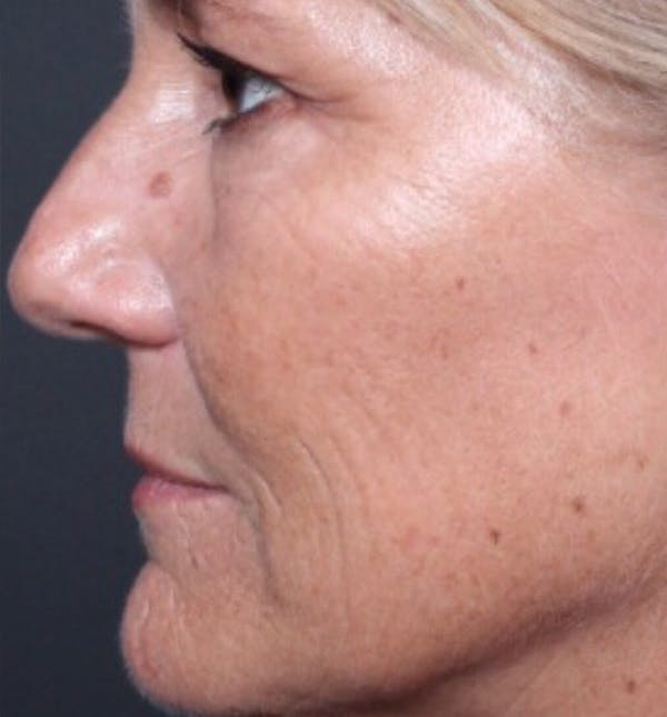 Injectables Gallery - Patient 14089602 - Image 1