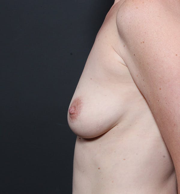 Breast Augmentation Gallery - Patient 14089601 - Image 5