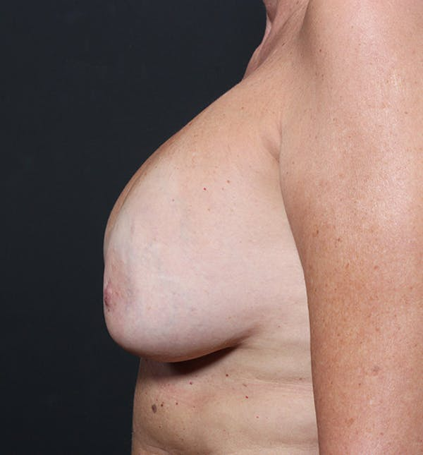 Breast Implant Revision Gallery - Patient 14089603 - Image 5