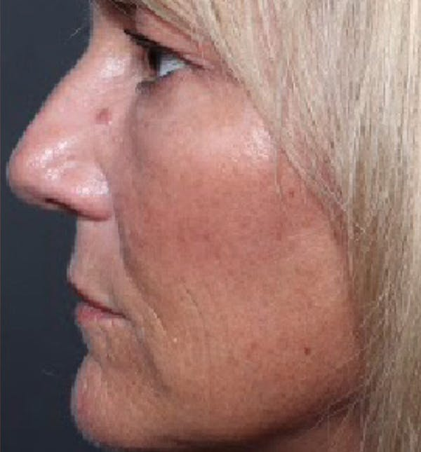 Injectables Gallery - Patient 14089602 - Image 2