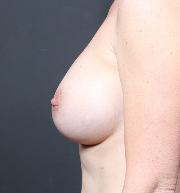Breast Augmentation Gallery - Patient 14089601 - Image 6