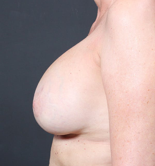 Breast Implant Revision Gallery - Patient 14089603 - Image 6