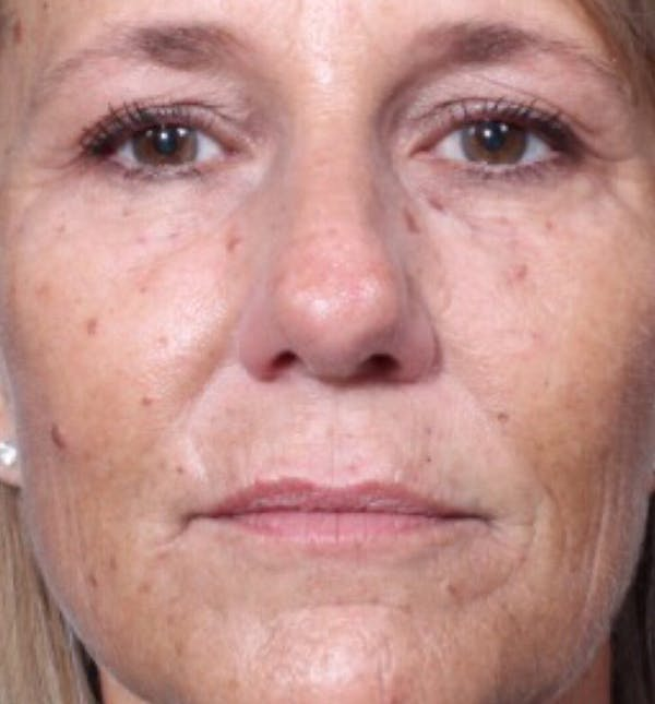 Injectables Gallery - Patient 14089602 - Image 3
