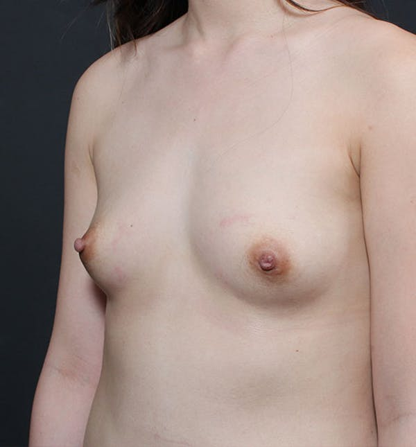 Breast Aug Fat Grafting Gallery - Patient 14089609 - Image 1