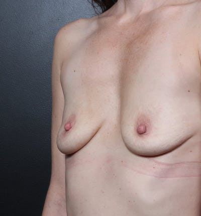 Breast Augmentation Gallery - Patient 14089607 - Image 1