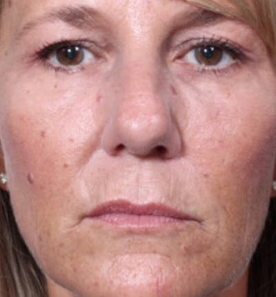 Injectables Gallery - Patient 14089602 - Image 4